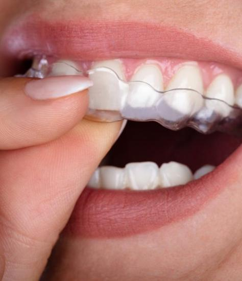 close up of person placing ClearCorrect aligner over their top teeth