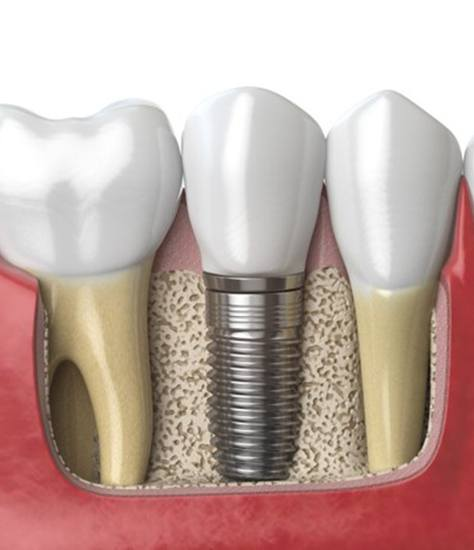 Diagram of dental implants in Colleyville