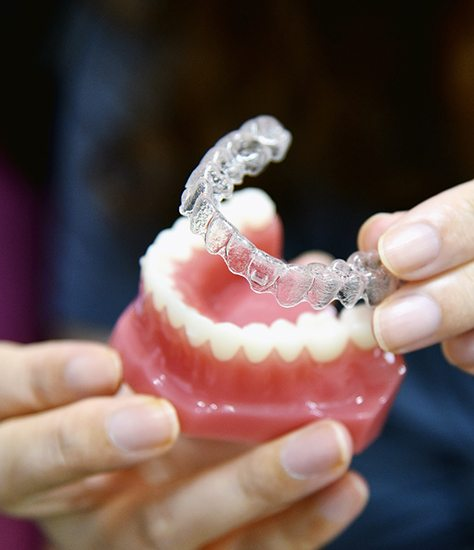 clear aligners being placed on a model of a mouth