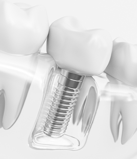 Animated dental implant supported dental crown